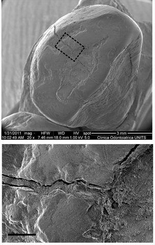 Posnetek plombiranega zoba
